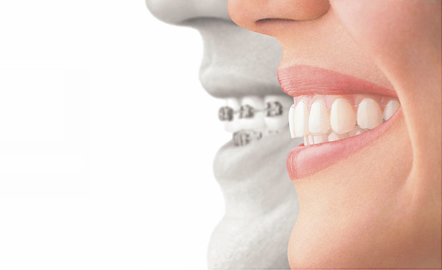 Invisalign® Ortodoncia Invisible | Santa Perpetua Clinica Dental