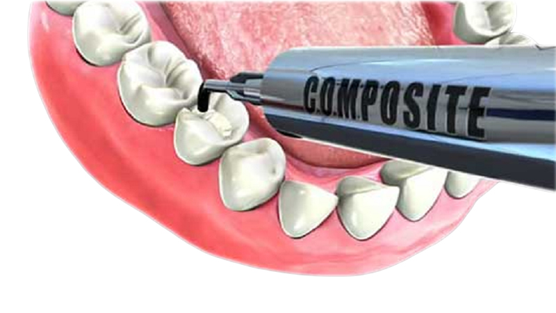 Composite - Tratamiento Caries y estética dental | Santa Perpetua Clínica Dental